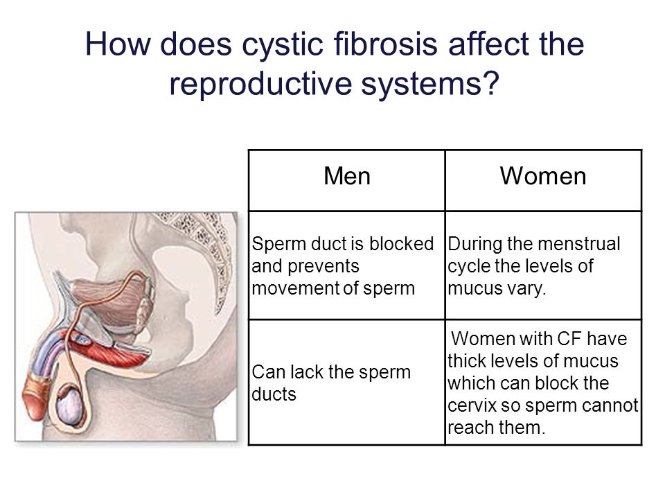 How does cystic fibrosis affect the reproductive systems? MenWomen Sperm duct is blocked and prevents movement of sperm During the menstrual cycle the