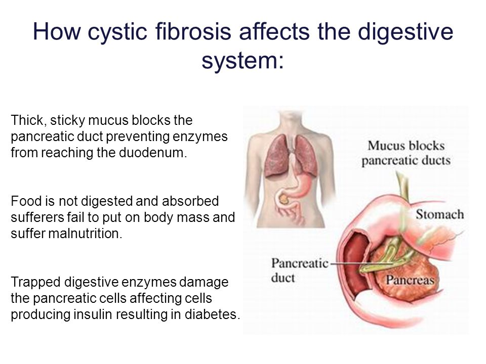 How cystic fibrosis affects the digestive system: Thick, sticky mucus blocks the pancreatic duct preventing enzymes from reaching the duodenum. Food i