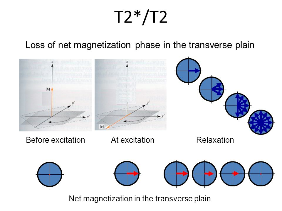 Loss of net magnetization phase in the transverse plain T2*/T2 Before excitationAt excitationRelaxation Net magnetization in the transverse plain