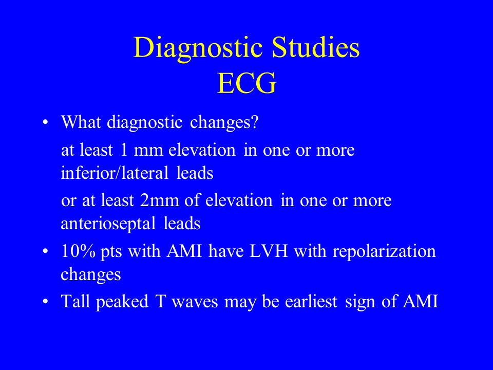 Diagnostic Studies ECG What diagnostic changes? at least 1 mm elevation in one or more inferior/lateral leads or at least 2mm of elevation in one or m