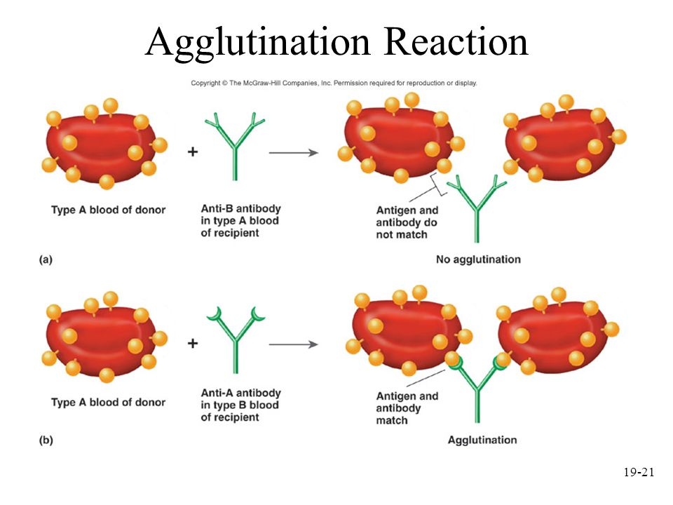 19-21 Agglutination Reaction