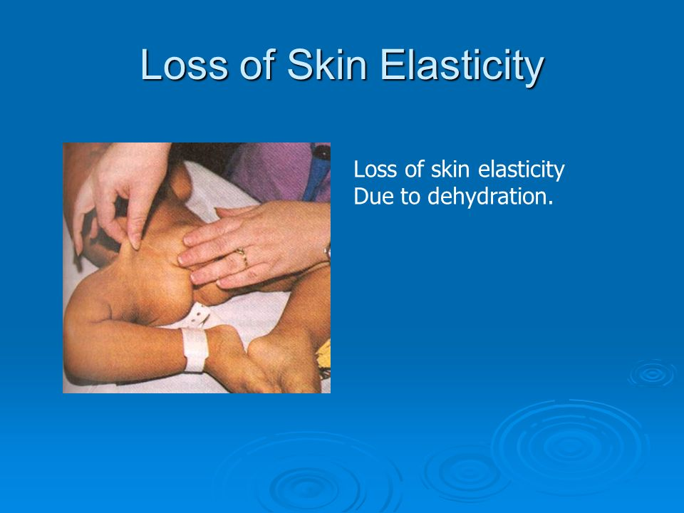 Loss of Skin Elasticity Loss of skin elasticity Due to dehydration.