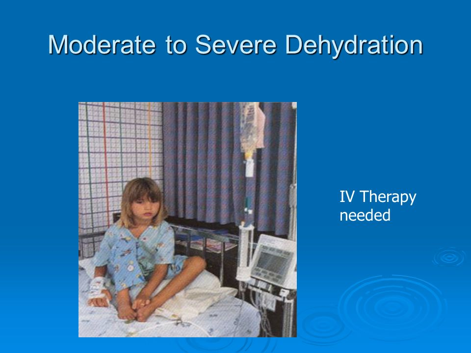 Moderate to Severe Dehydration IV Therapy needed