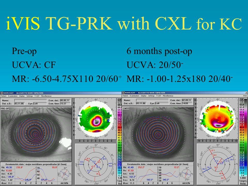 Pre-op6 months post-op UCVA: CFUCVA: 20/50 - MR: -6.50-4.75X110 20/60 + MR: -1.00-1.25x180 20/40 - iVIS TG-PRK with CXL for KC