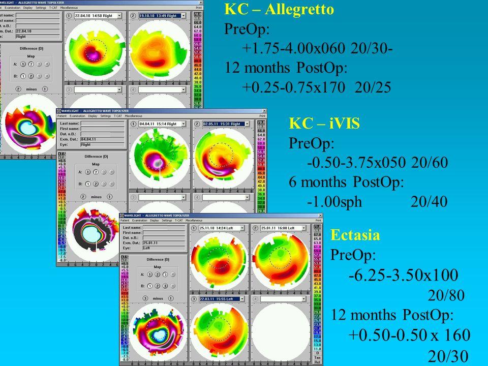 KC – Allegretto PreOp: +1.75-4.00x060 20/30- 12 months PostOp: +0.25-0.75x170 20/25 KC – iVIS PreOp: -0.50-3.75x050 20/60 6 months PostOp: -1.00sph 20