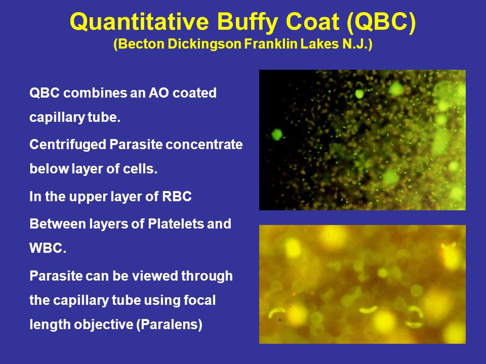 Quantitative Buffy Coat (QBC) (Becton Dickingson Franklin Lakes N.J.) QBC combines an AO coated capillary tube. Centrifuged Parasite concentrate below