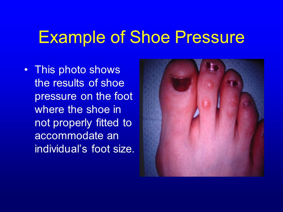 Example of Shoe Pressure This photo shows the results of shoe pressure on the foot where the shoe in not properly fitted to accommodate an individuals