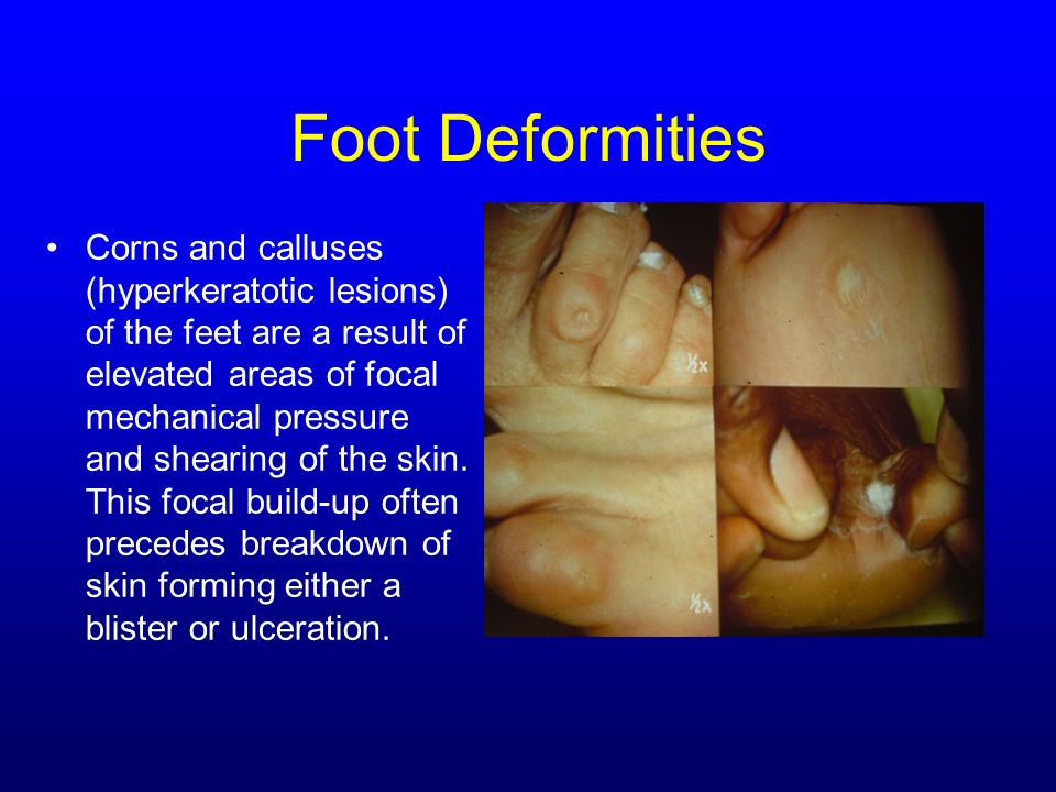 Foot Deformities Corns and calluses (hyperkeratotic lesions) of the feet are a result of elevated areas of focal mechanical pressure and shearing of t