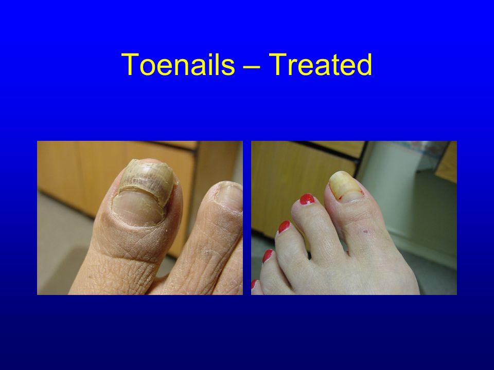 Toenails – Treated