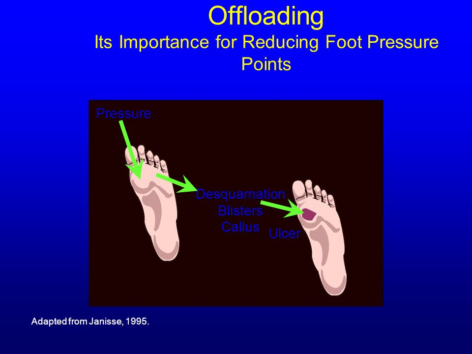 Offloading Its Importance for Reducing Foot Pressure Points Adapted from Janisse, 1995. Pressure Desquamation Blisters Callus Ulcer