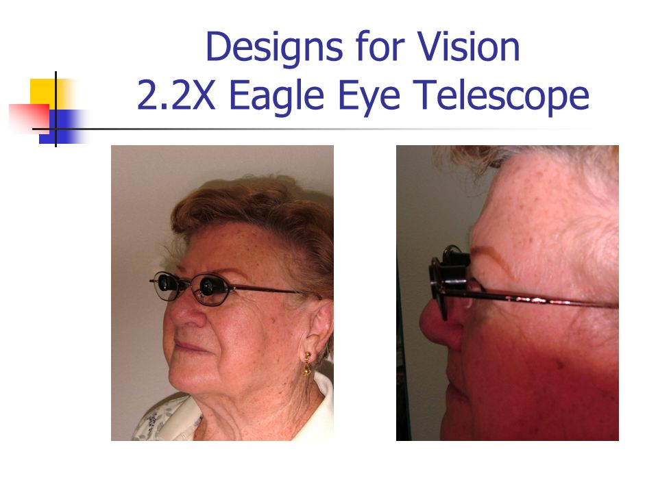 Designs for Vision 2.2X Eagle Eye Telescope