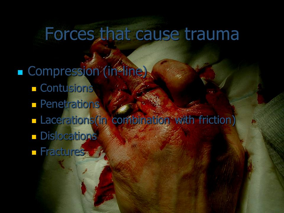 Forces that cause trauma Compression (in-line) Compression (in-line) Contusions Contusions Penetrations Penetrations Lacerations(in combination with f