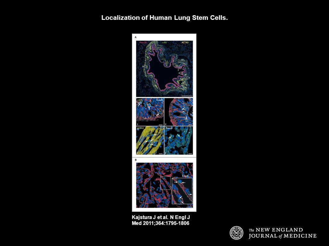 Localization of Human Lung Stem Cells. Kajstura J et al. N Engl J Med 2011;364:1795-1806