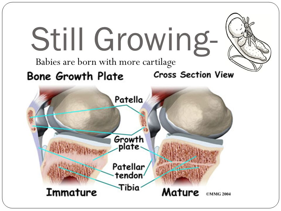 Still Growing- Babies are born with more cartilage