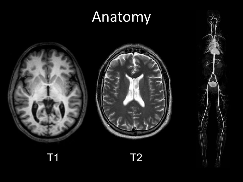 Anatomy 1T1T2T2T
