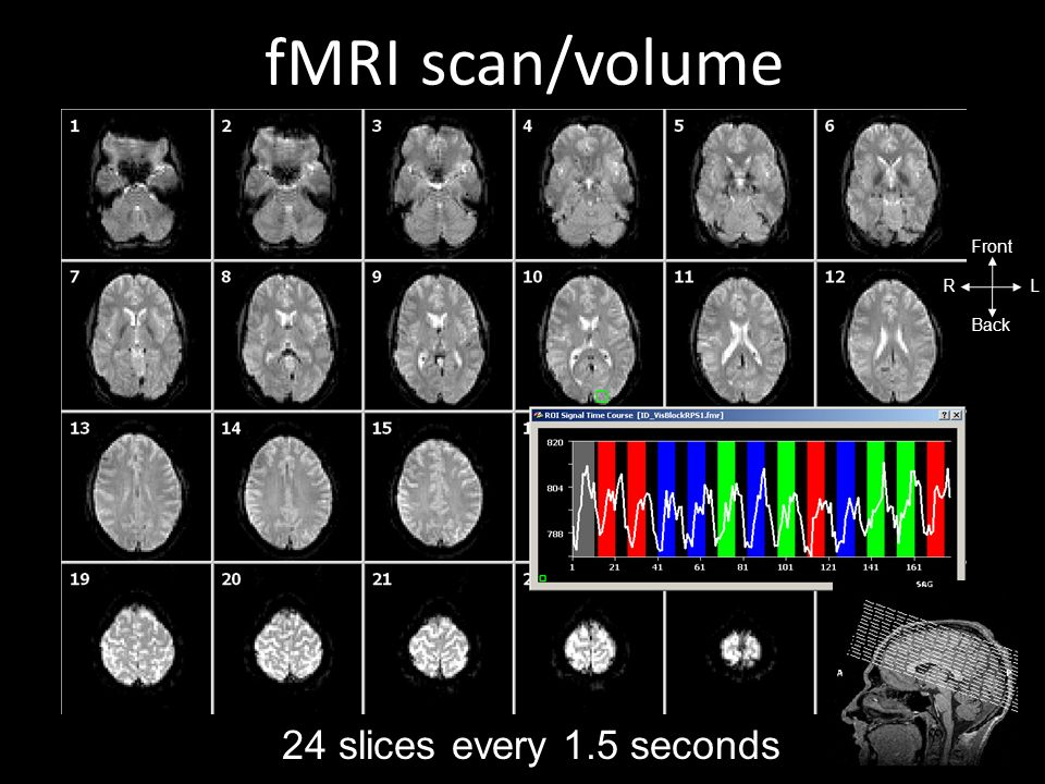 scan/volume fMRI RL Front Back 24 slices every 1.5 seconds