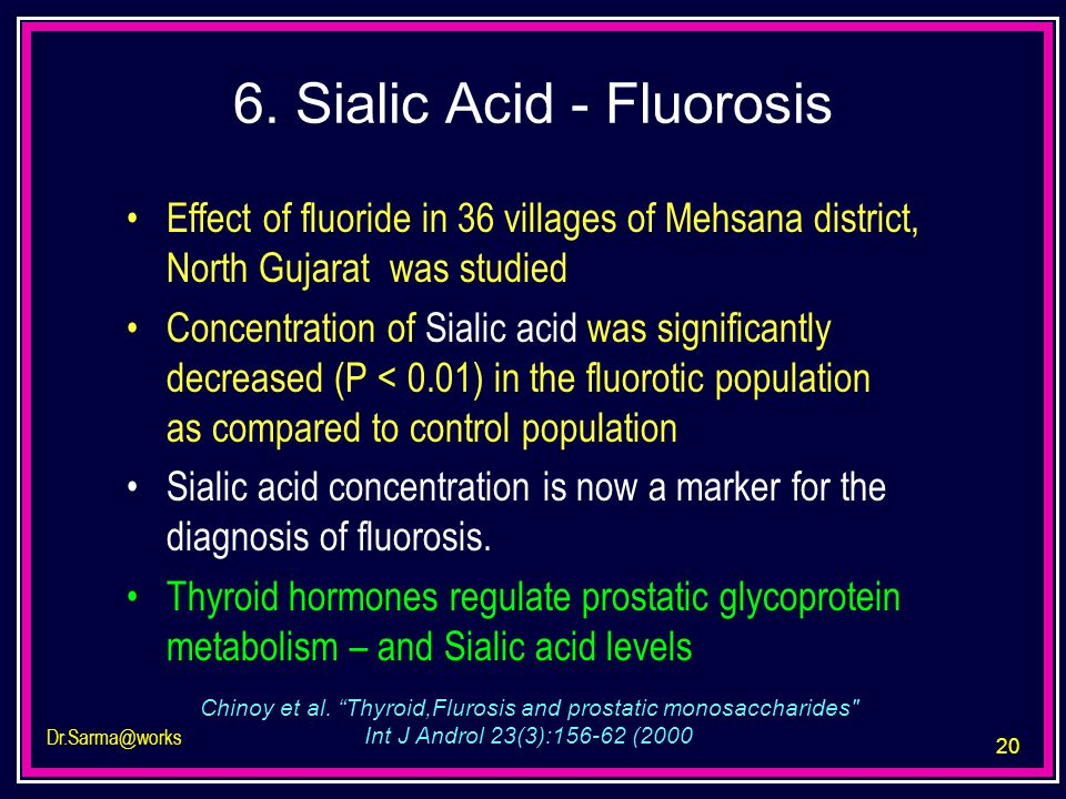 20 Dr.Sarma@works 6. Sialic Acid - Fluorosis Effect of fluoride in 36 villages of Mehsana district, North Gujarat was studied Concentration of Sialic
