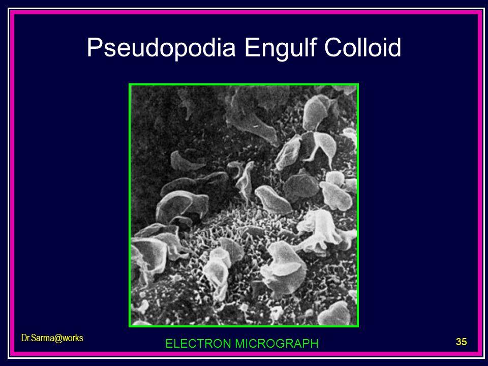 35 Dr.Sarma@works Pseudopodia Engulf Colloid ELECTRON MICROGRAPH
