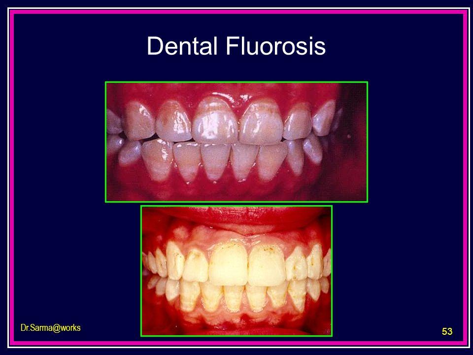 53 Dr.Sarma@works Dental Fluorosis