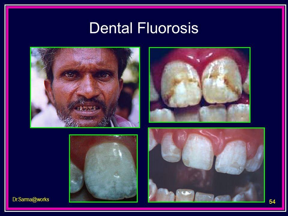 54 Dr.Sarma@works Dental Fluorosis