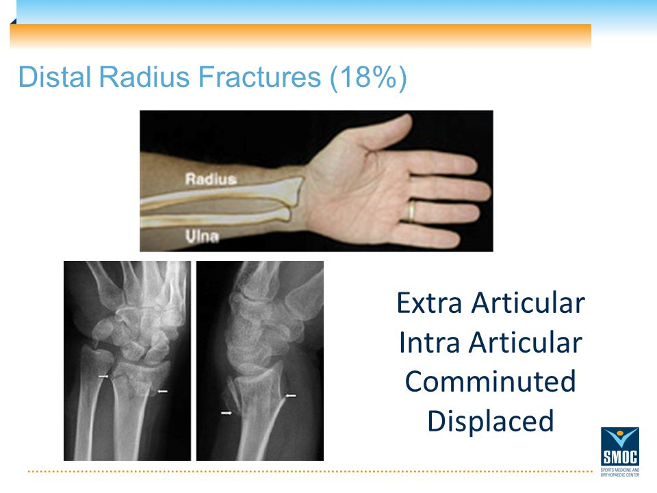 Distal Radius Fractures (18%) Extra Articular Intra Articular Comminuted Displaced