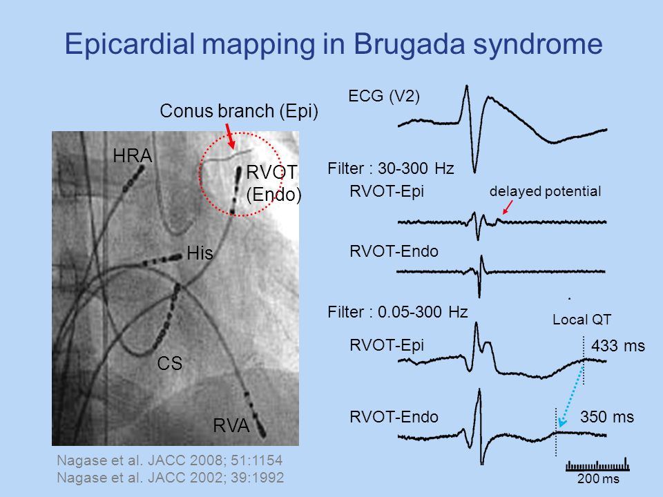 HRA His CS RVA Conus branch (Epi) RVOT (Endo) ECG (V2) Epicardial mapping in Brugada syndrome RVOT-Epi RVOT-Endo Filter : 30-300 Hz delayed potential