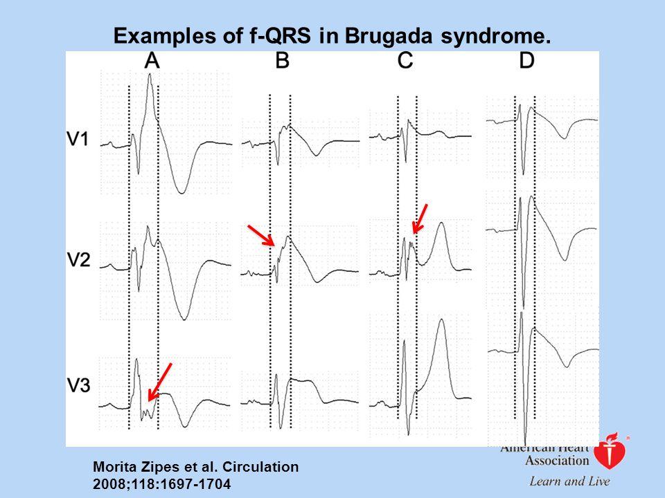 Examples of f-QRS in Brugada syndrome. Morita Zipes et al. Circulation 2008;118:1697-1704
