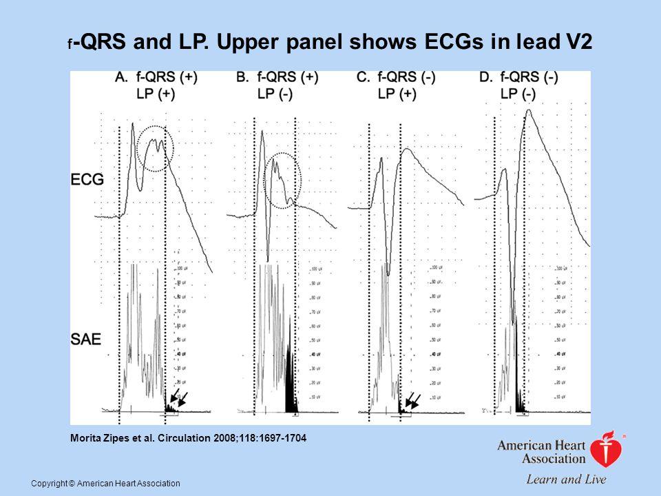 f -QRS and LP. Upper panel shows ECGs in lead V2 Morita Zipes et al. Circulation 2008;118:1697-1704 Copyright © American Heart Association