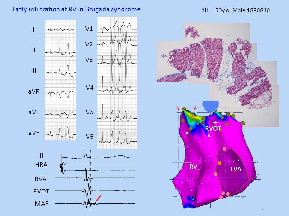 KH 50y.o. Male 1890840 II HRA RVA RVOT MAP TVA RV RVOT I II III aVR aVL aVF V1 V2 V3 V4 V5 V6 Fatty infiltration at RV in Brugada syndrome