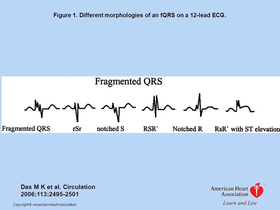 Figure 1. Different morphologies of an fQRS on a 12-lead ECG. Das M K et al. Circulation 2006;113:2495-2501 Copyright © American Heart Association