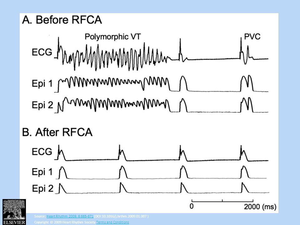 Source: Heart Rhythm 2009; 6:665-671 (DOI:10.1016/j.hrthm.2009.01.007 )Heart Rhythm 2009; 6:665-671 Copyright © 2009 Heart Rhythm Society Terms and Co