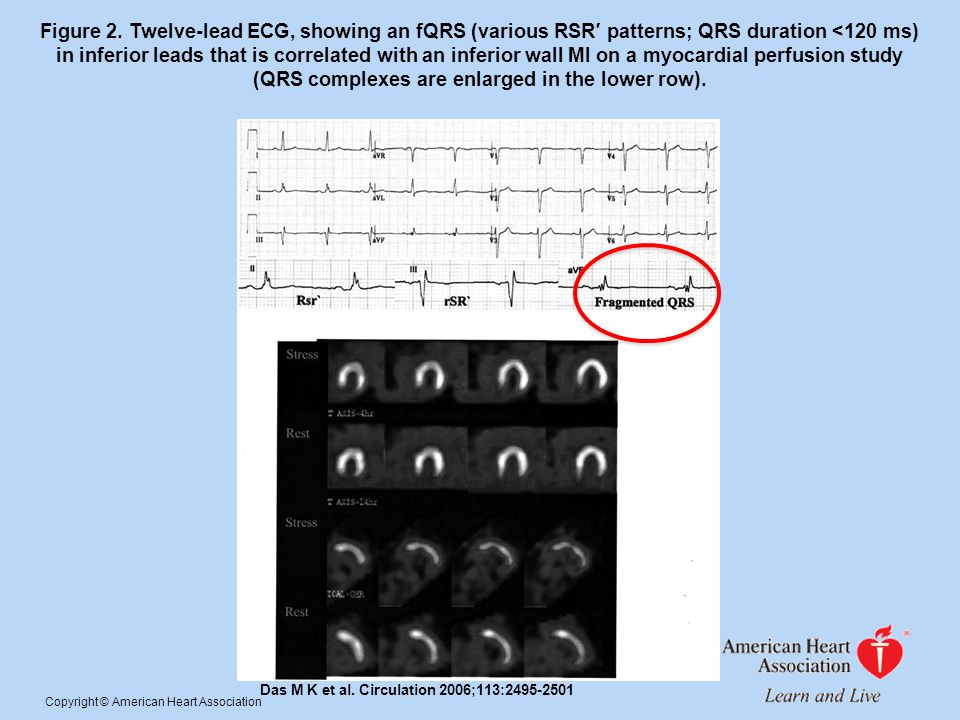Figure 2. Twelve-lead ECG, showing an fQRS (various RSR patterns; QRS duration <120 ms) in inferior leads that is correlated with an inferior wall MI