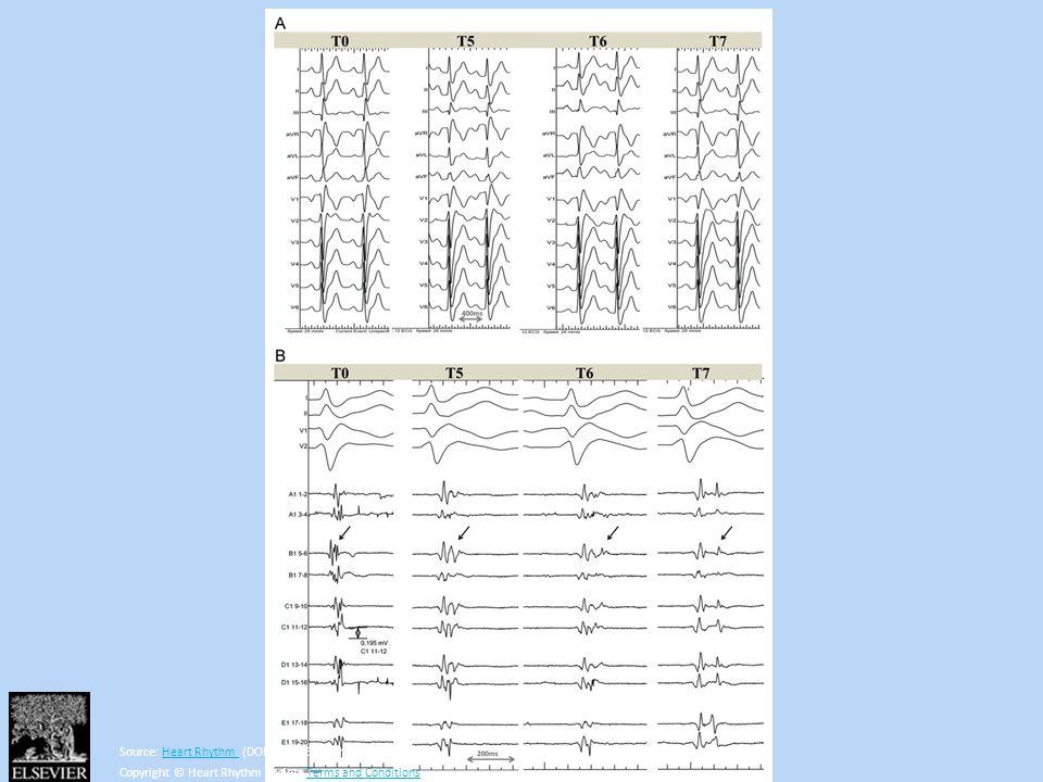 Source: Heart Rhythm (DOI:10.1016/j.hrthm.2013.05.023 )Heart Rhythm Copyright © Heart Rhythm Society Terms and ConditionsTerms and Conditions