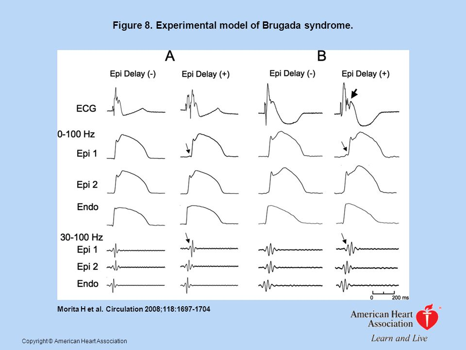 Figure 8. Experimental model of Brugada syndrome. Morita H et al. Circulation 2008;118:1697-1704 Copyright © American Heart Association