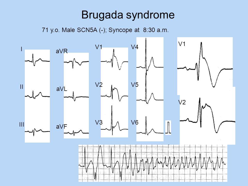 Brugada syndrome 71 y.o. Male SCN5A (-); Syncope at 8:30 a.m. V1 V2 I II III aVR aVL aVF V1 V2 V3 V4 V5 V6