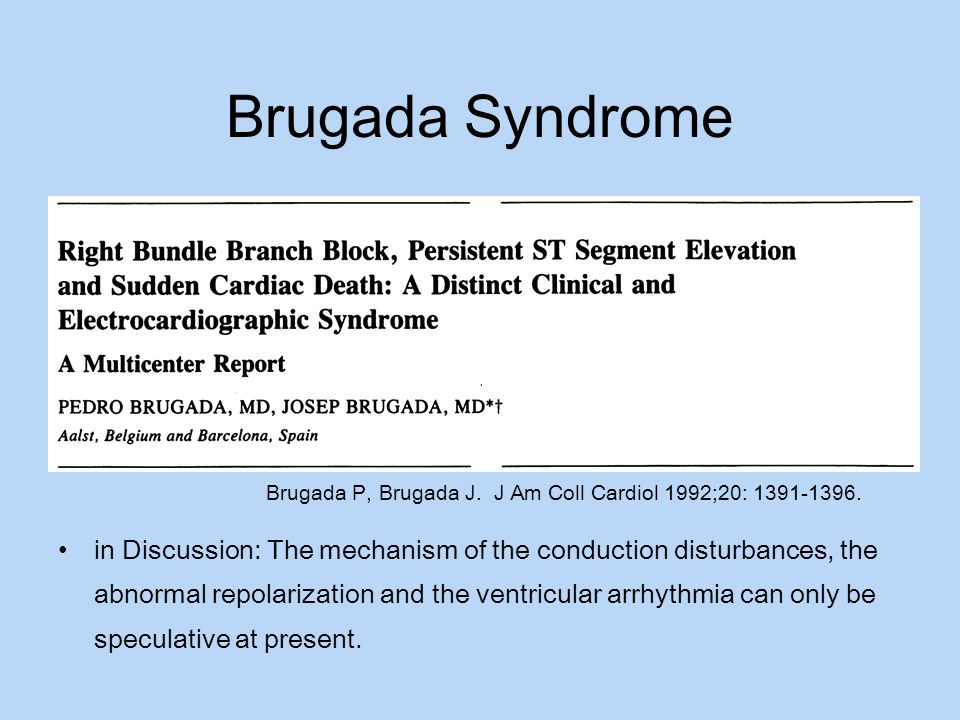 Brugada Syndrome in Discussion: The mechanism of the conduction disturbances, the abnormal repolarization and the ventricular arrhythmia can only be s