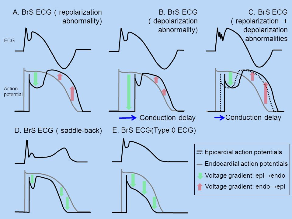 A. BrS ECG repolarization abnormality) C. BrS ECG repolarization + depolarization abnormalities Conduction delay B. BrS ECG depolarization abnormality