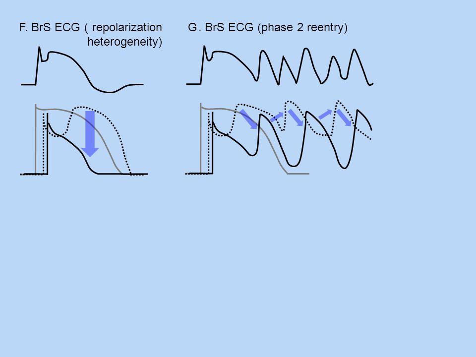 F. BrS ECG repolarization heterogeneity). BrS ECG (phase 2 reentry)