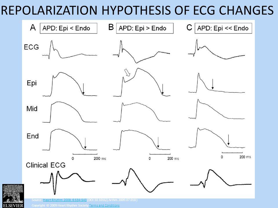 Source: Heart Rhythm 2009; 6:S34-S43 (DOI:10.1016/j.hrthm.2009.07.018 )Heart Rhythm 2009; 6:S34-S43 Copyright © 2009 Heart Rhythm Society Terms and Co
