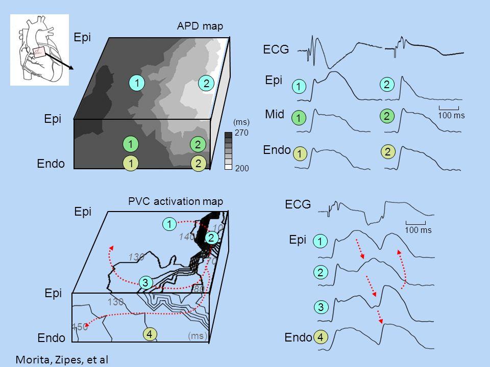 1 2 3 4 Epi ECG Endo 100 ms 1 2 1 2 1 2 Epi Mid Endo ECG 100 ms 1 2 1 2 1 2 Endo Epi APD map 270 (ms) 200 PVC activation map Epi Endo Epi 130 150 80 1