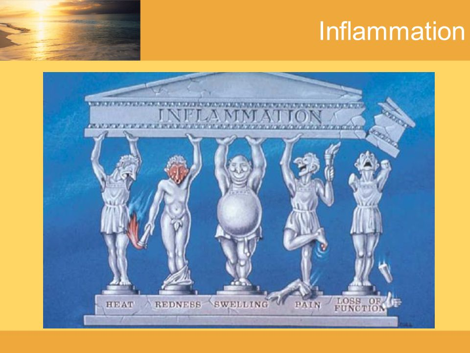 Inflammation - General People with bipolar disorder are three times more likely to develop an autoimmune thyroid disease which is a known inflammatory disorder.