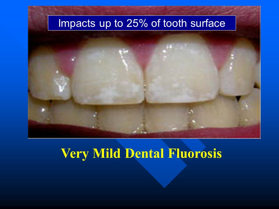Very Mild Dental Fluorosis Impacts up to 25% of tooth surface
