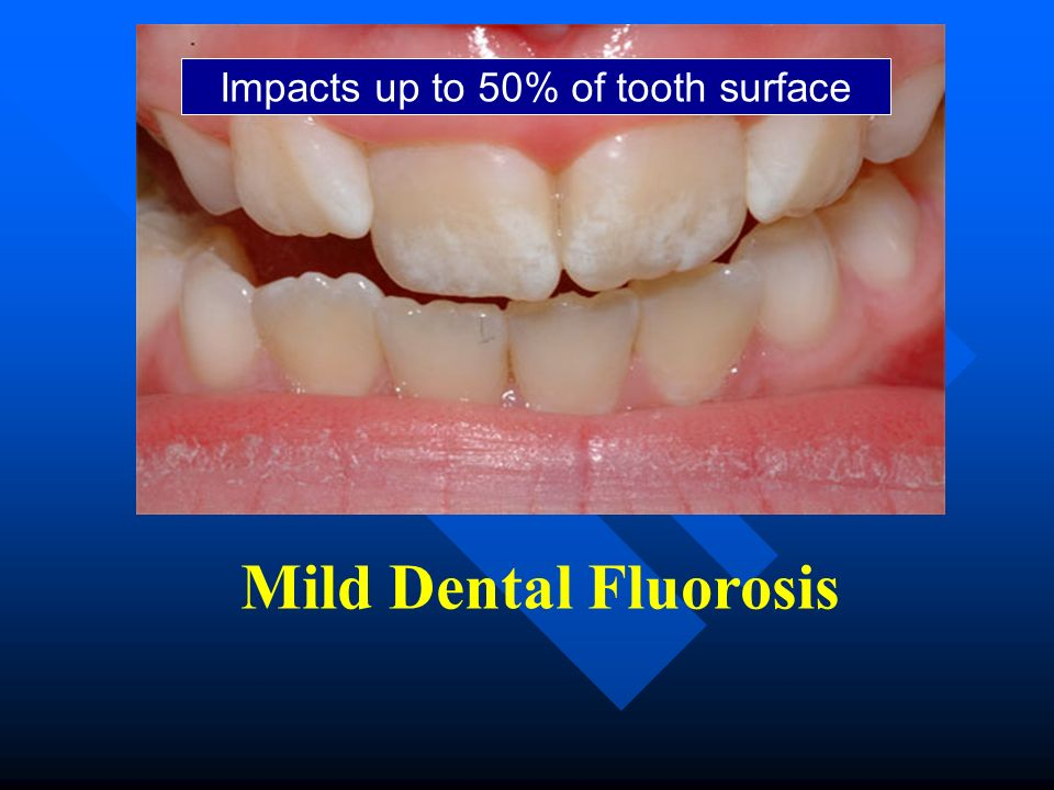 Mild Dental Fluorosis Impacts up to 50% of tooth surface
