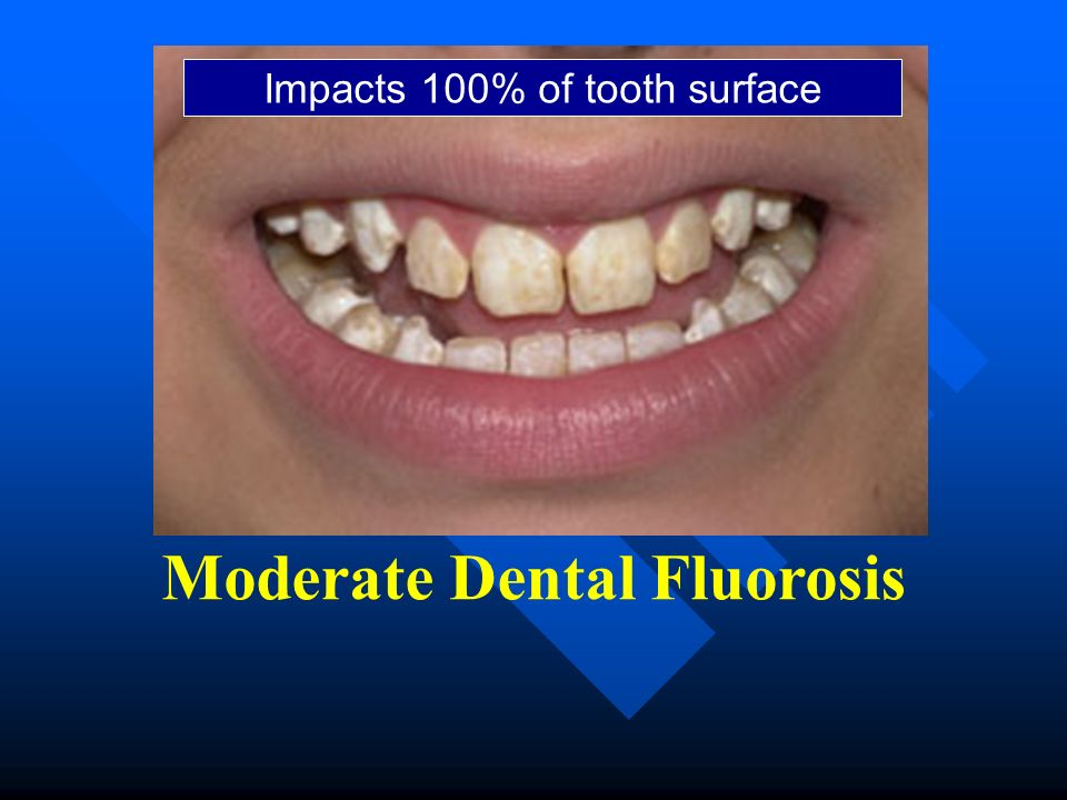 Moderate Dental Fluorosis Impacts 100% of tooth surface