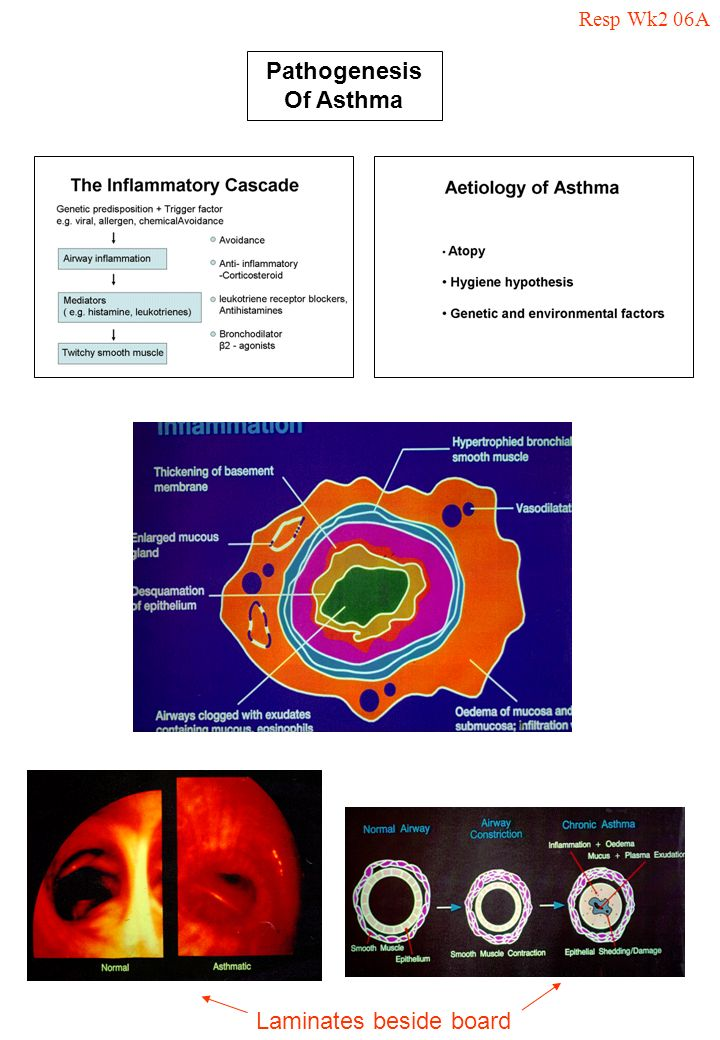 Pathogenesis Of Asthma Laminates beside board Resp Wk2 06A
