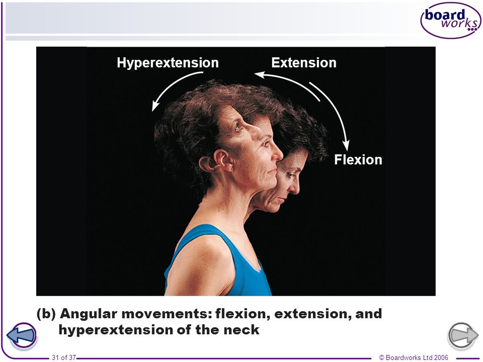 © Boardworks Ltd 200632 of 37 Hyperextension Flexion Extension (c) Angular movements: flexion, extension, and hyperextension of the vertebral column