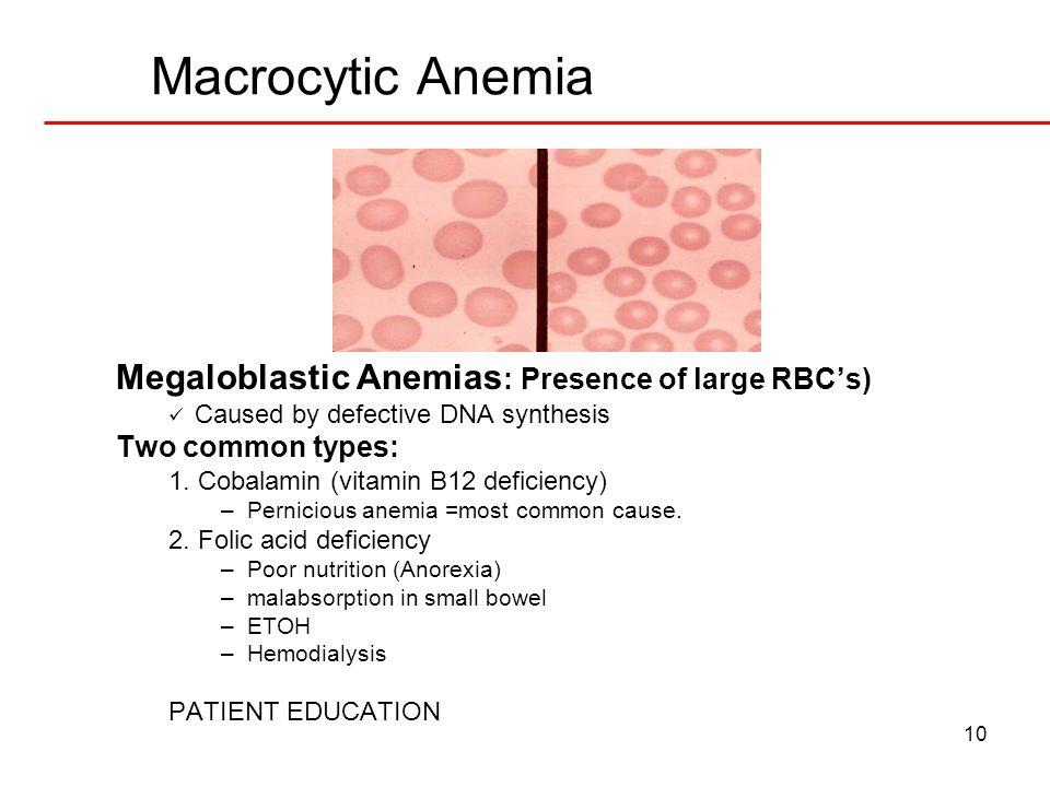 10 Macrocytic Anemia Megaloblastic Anemias : Presence of large RBCs) Caused by defective DNA synthesis Two common types: 1. Cobalamin (vitamin B12 def