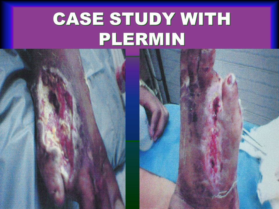 CASE STUDY WITH PLERMIN
