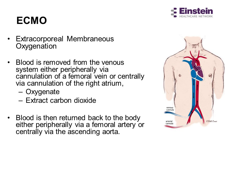 ECMO Extracorporeal Membraneous Oxygenation Blood is removed from the venous system either peripherally via cannulation of a femoral vein or centrally