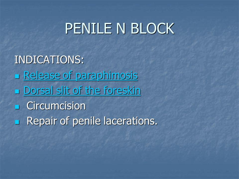 PENILE N BLOCK INDICATIONS: Release of paraphimosis Release of paraphimosis Release of paraphimosis Release of paraphimosis Dorsal slit of the foreski